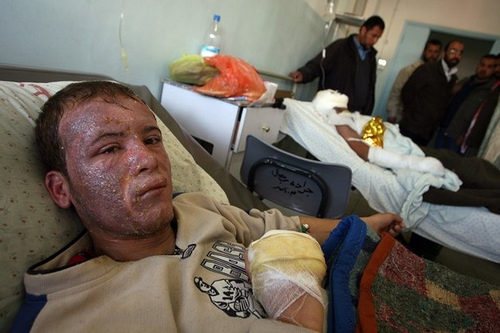 Palestinian Mohamed Ahmed is treated for burns at the Nasser Hospital in Khan Yunis in the southern Gaza Strip on January 12, 2009.
