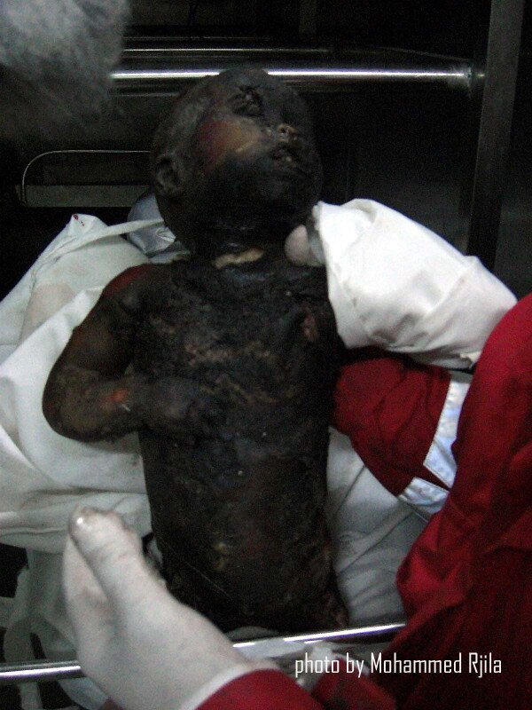 No this isn't photoshopped.  If this isn't a war crime then I don't know what is. - See more at: http://www.apartheidexists.com/why-didnt-the-u-s-invade-israel-when-it-used-chemical-weapons-on-palestinians/#sthash.coDpdQNl.dpuf