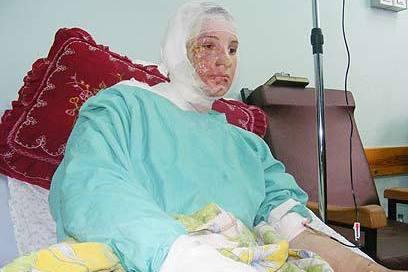 Ghada Abu Halima, 21, who was gravely injured by IDF white phosphorus in Gaza. Abu Halima later died of her wounds (photo: Muhammad Sabah / B'tzelem)